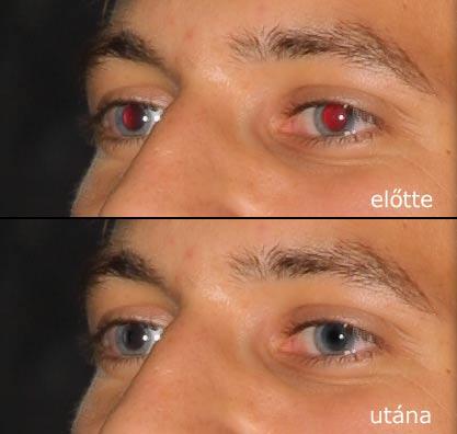 removing red eye effect in photoshop digiretus com