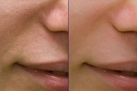 Image result for skin softening