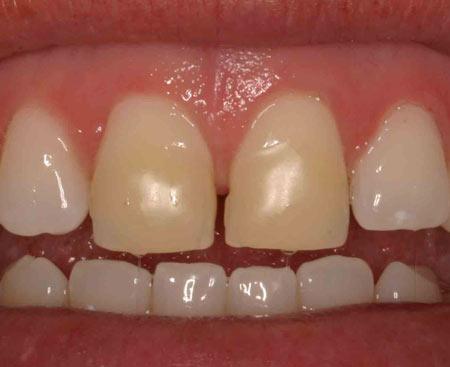 Adobe Lightroom Teeth Whitening Digiretus Com